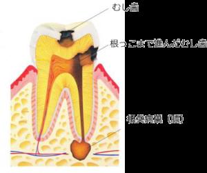 虫歯の断面
