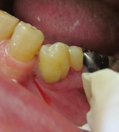 犬歯の隣の小臼歯