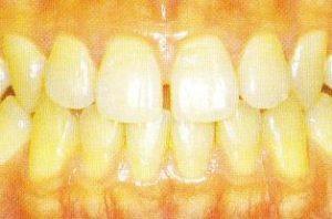 健康歯肉ってどういう状態?