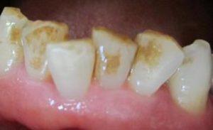 ヤニ・汚れのついている歯