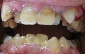 歯石のついて歯