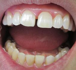 上6前歯ホワイトニング 下はなし