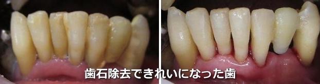 歯石除去できれいになった歯