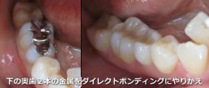 金属の奥歯2本をダイレクトボンディングにやりかえ