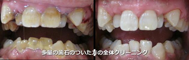 多量の歯石のついた歯のクリーニング