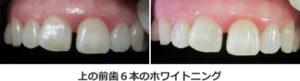 上の前歯6本のホワイトニング